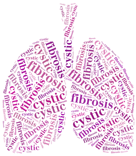 cystic fibrosis an overview Epidemiology cystic fibrosis (cf) is the second most common life shortening inherited disease in childhood, and is the most common among the caucasian population approximately 30,000 americans have cf.