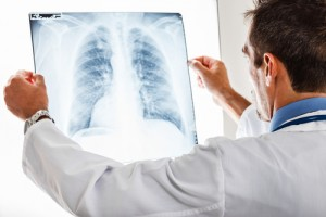 lung infection and cystic fibrosis