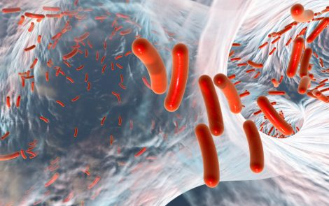 Enzyme That Degrades Biofilm May Be Key to Treating Pseudomonas Lung Infection in CF