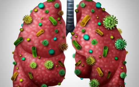 CF Patients with Lung Co-infections Have Poor Clinical Outcomes, Study Finds