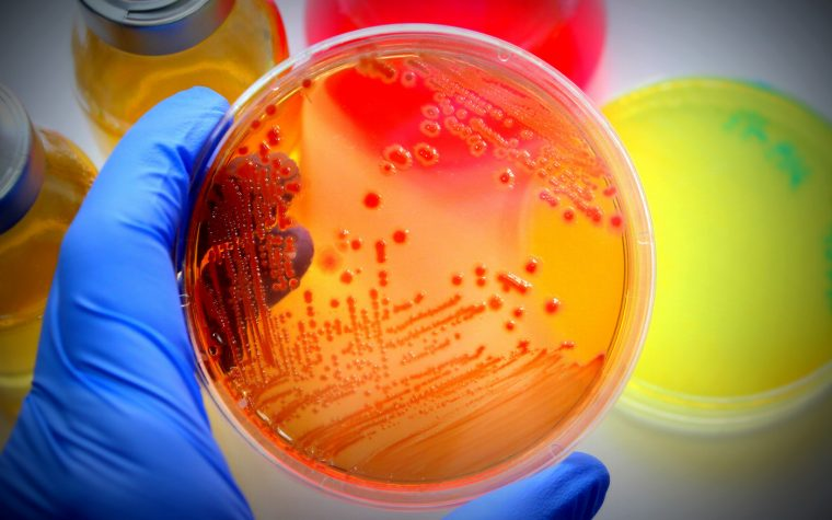 Predatory Bacteria Found in Spanish Study of Cystic Fibrosis Lung Micro-organisms